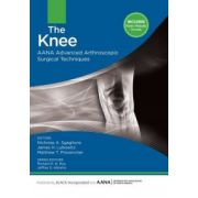 Knee: AANA Advanced Arthroscopic Surgical Techniques