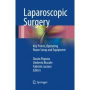 Laparoscopic Surgery: Key Points, Operating Room Setup and Equipment