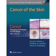 Cancer of the Skin (Cancer: Principles & Practice of Oncology)