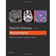 Grainger & Allison's Diagnostic Radiology: Neuroimaging