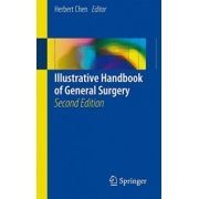 Illustrative Handbook of General Surgery