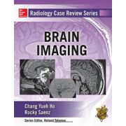 Brain Imaging (Radiology Case Review Series)