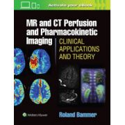 MR & CT Perfusion Imaging: Clinical Applications and Theoretical Principles