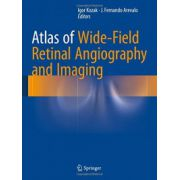 Atlas of Wide-Field Retinal Angiography and Imaging