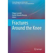 Fractures Around the Knee (Fracture Management Joint by Joint)