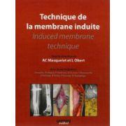 Technique de la membrane induite - Induced membrane technique