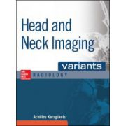 Head and Neck Imaging Variants (Radiology Variants)