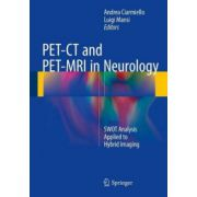 PET-CT and PET-MRI in Neurology: SWOT Analysis Applied to Hybrid Imaging