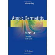 Atopic Dermatitis: Eczema