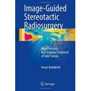 Image-Guided Stereotactic Radiosurgery: High-Precision, Non-invasive Treatment of Solid Tumors
