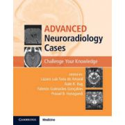 Advanced Neuroradiology Cases: Challenge Your Knowledge