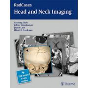 Head and Neck Imaging (RadCases)