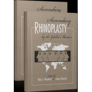 Secondary Rhinoplasty: By the Global Masters, 2-Volume Set