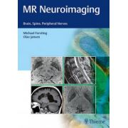 MR Neuroimaging: Brain, Spine, and Peripheral Nerves