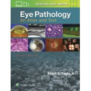 Eye Pathology: An Atlas and Text