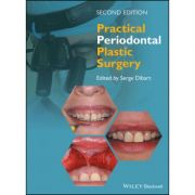 Practical Periodontal Plastic Surgery