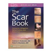 Scar Book: Formation, Mitigation, Rehabilitation and Prevention