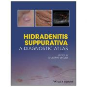 Hidradenitis Suppurativa: A Diagnostic Atlas