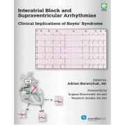 Interatrial Block and Supraventricular Arrhythmias: Clinical Implications of Bayés' Syndrome