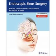 Endoscopic Sinus Surgery: Anatomy, Three-Dimensional Reconstruction, and Surgical Technique