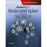 ExpertDDx: Brain and Spine