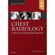 Chest Radiology: Patterns and Differential Diagnoses