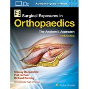 Surgical Exposures in Orthopaedics: Anatomic Approach