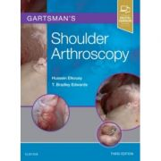 Gartsman's Shoulder Arthroscopy
