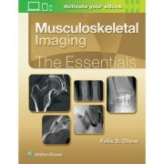 Musculoskeletal Imaging: Essentials