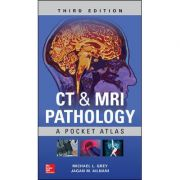 CT & MRI Pathology: A Pocket Atlas