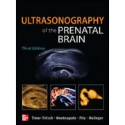 Ultrasonography of the Prenatal Brain