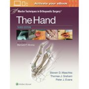 Master Techniques in Orthopaedic Surgery: Hand