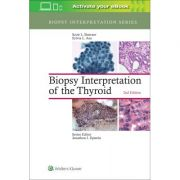 Biopsy Interpretation of the Thyroid