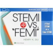 "STEMI vs. ""FEMI"": A Real STEMI or a Fake STEMI"