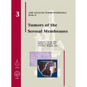 Tumors of the Serosal Membranes (AFIP Atlas of Tumor Pathology, Series 4, Number 3)