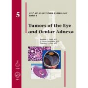 Tumors of the Eye and Ocular Adnexa (AFIP Atlas of Tumor Pathology, Series 4, Number 5)