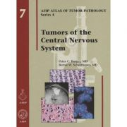 Tumors of the Central Nervous System (AFIP Atlas of Tumor Pathology, Series 4, Number 7)