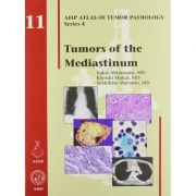 Tumors of the Mediastinum (AFIP Atlas of Tumor Pathology, Series 4, Number 11)