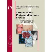 Tumors of the Peripheral Nervous System (AFIP Atlas of Tumor Pathology, Series 4, Number 19)