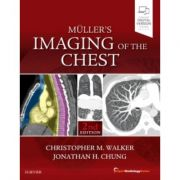 Muller's Imaging of the Chest (Expert Radiology)