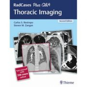 RadCases Plus Q&A: Thoracic Imaging