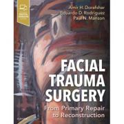 Facial Trauma Surgery: From Primary Repair to Reconstruction