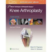 Master Techniques in Orthopedic Surgery: Knee Arthroplasty