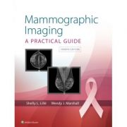 Mammographic Imaging: A Practical Guide