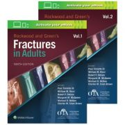 Rockwood and Green's Fractures in Adults, 2-Volume Set