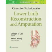 Operative Techniques in Lower Limb Reconstruction and Amputation (Operative Techniques in Plastic Surgery)