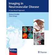 Imaging in Neurovascular Disease: A Case-Based Approach