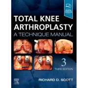 Total Knee Arthroplasty: A Technique Manual