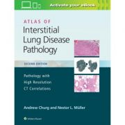 Atlas of Interstitial Lung Disease Pathology