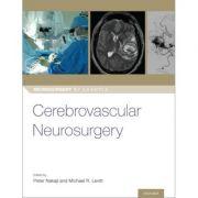Cerebrovascular Neurosurgery (Neurosurgery by Example)